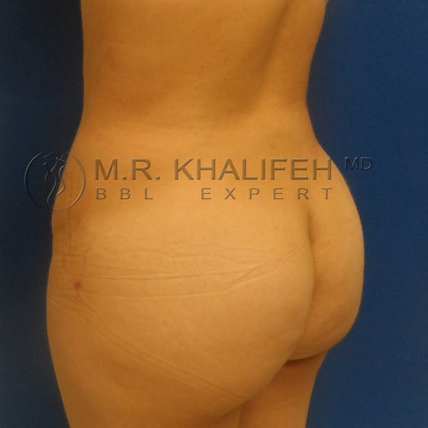 Flank-Lower Back Liposuction Gallery - Patient 3720010 - Image 8