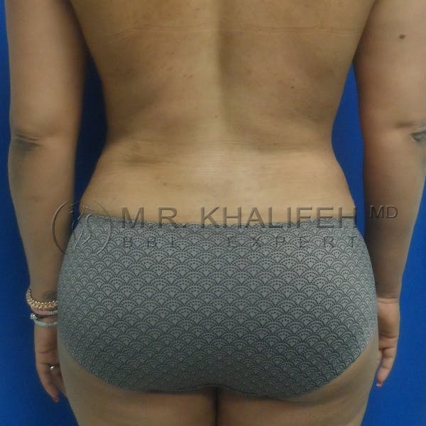 Flank-Lower Back Liposuction Gallery - Patient 3720074 - Image 4