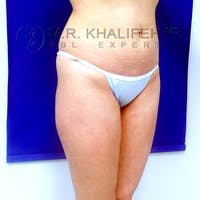 Flank-Lower Back Liposuction Gallery - Patient 3720139 - Image 1