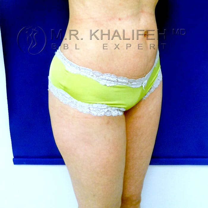 Flank-Lower Back Liposuction Gallery - Patient 3720139 - Image 2