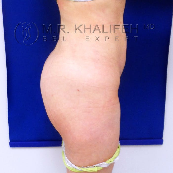 Flank-Lower Back Liposuction Gallery - Patient 3720139 - Image 6