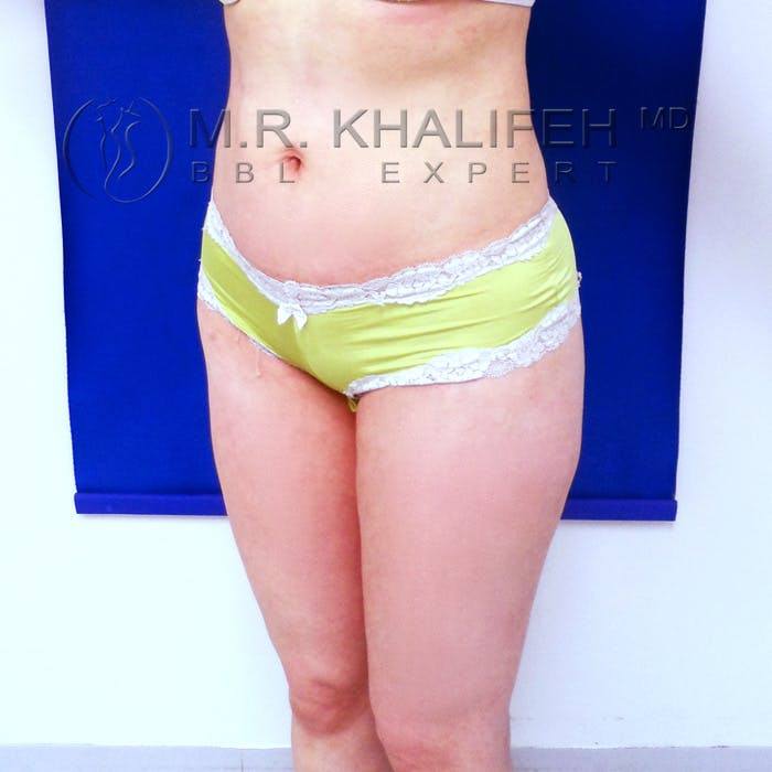 Flank-Lower Back Liposuction Gallery - Patient 3720139 - Image 8