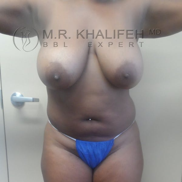 Flank-Lower Back Liposuction Gallery - Patient 3720189 - Image 1