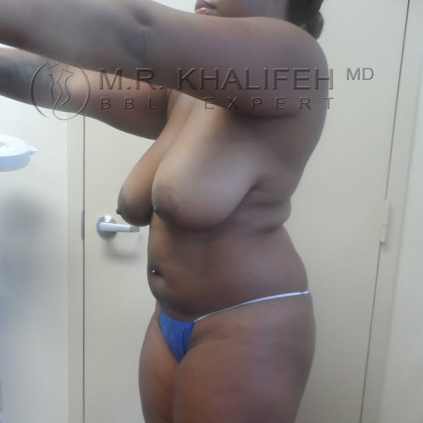Flank-Lower Back Liposuction Gallery - Patient 3720189 - Image 7