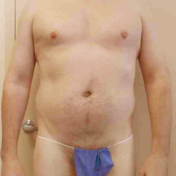 Flank-Lower Back Liposuction Gallery - Patient 3720278 - Image 3