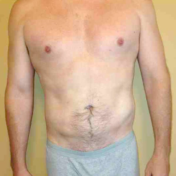 Flank-Lower Back Liposuction Gallery - Patient 3720278 - Image 4