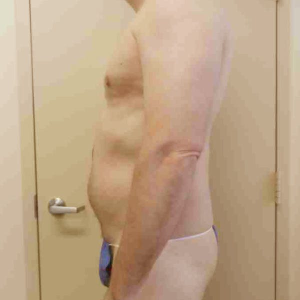 Flank-Lower Back Liposuction Gallery - Patient 3720278 - Image 7