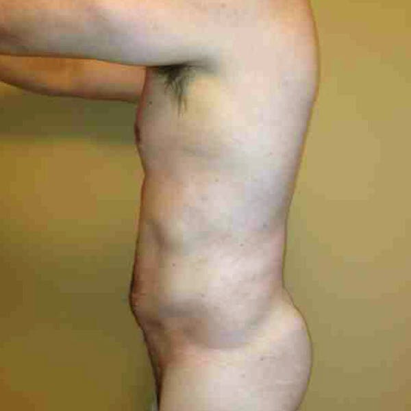 Flank-Lower Back Liposuction Gallery - Patient 3720278 - Image 8