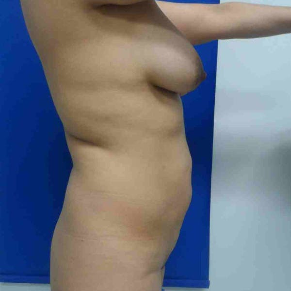 Flank-Lower Back Liposuction Gallery - Patient 3720376 - Image 1