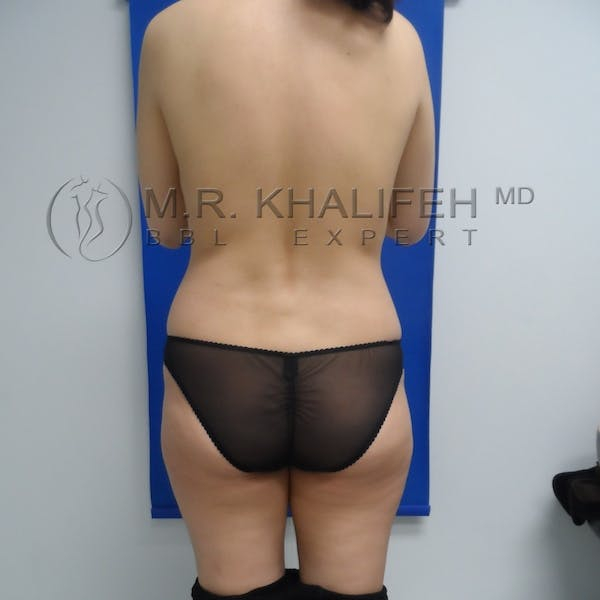 Flank-Lower Back Liposuction Gallery - Patient 3720437 - Image 3