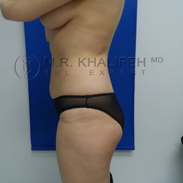Flank-Lower Back Liposuction Gallery - Patient 3720437 - Image 7