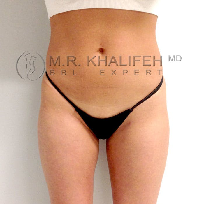 Flank-Lower Back Liposuction Gallery - Patient 3720493 - Image 2