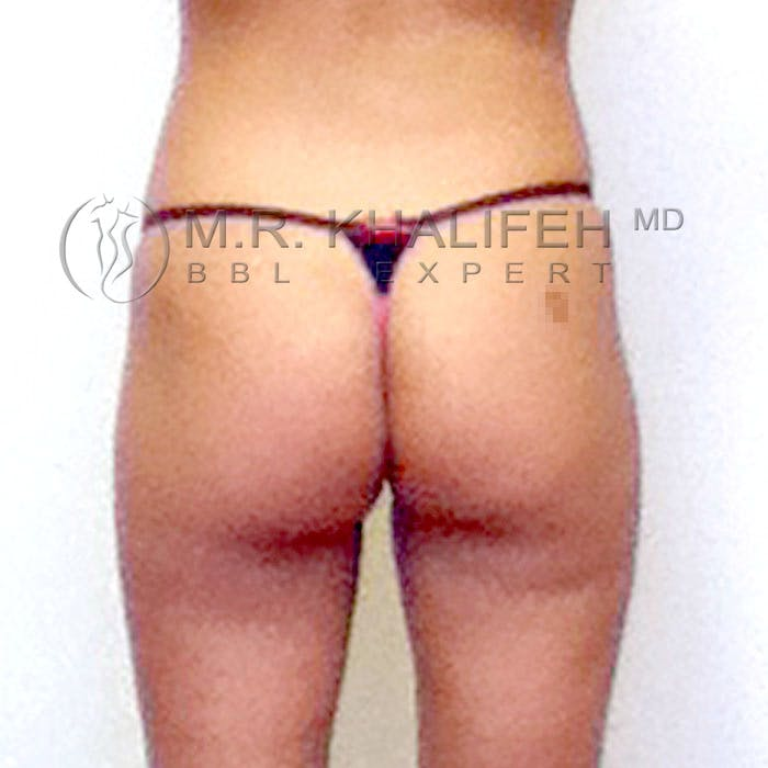 Flank-Lower Back Liposuction Gallery - Patient 3720493 - Image 3