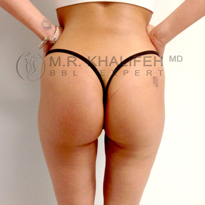 Flank-Lower Back Liposuction Gallery - Patient 3720493 - Image 4
