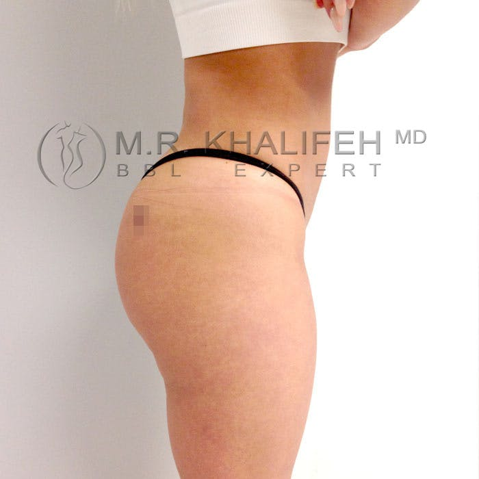 Flank-Lower Back Liposuction Gallery - Patient 3720493 - Image 8