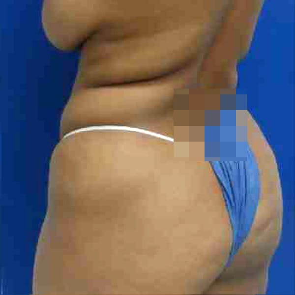 Flank-Lower Back Liposuction Gallery - Patient 3720640 - Image 3