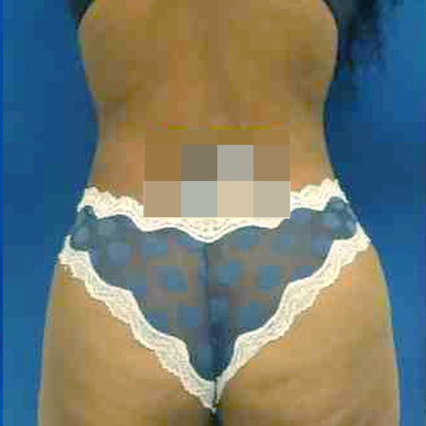 Flank-Lower Back Liposuction Gallery - Patient 3720640 - Image 8