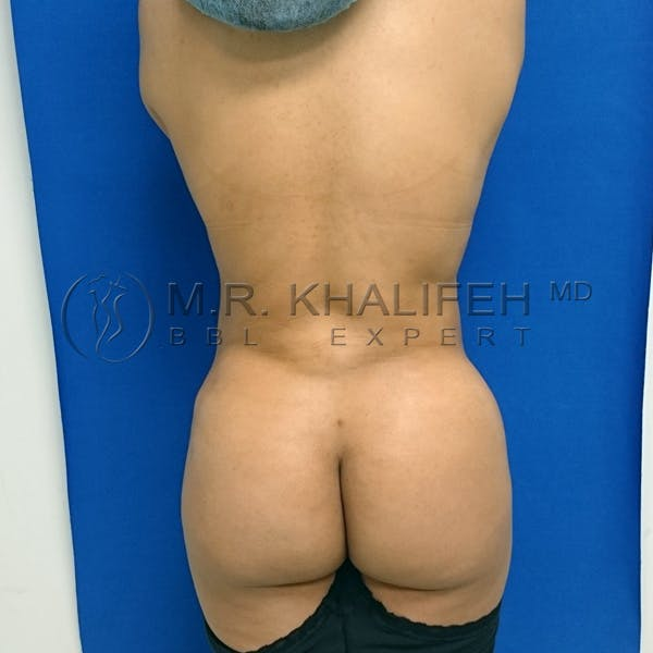 Flank-Lower Back Liposuction Gallery - Patient 3720768 - Image 4