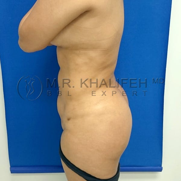 Flank-Lower Back Liposuction Gallery - Patient 3720768 - Image 6