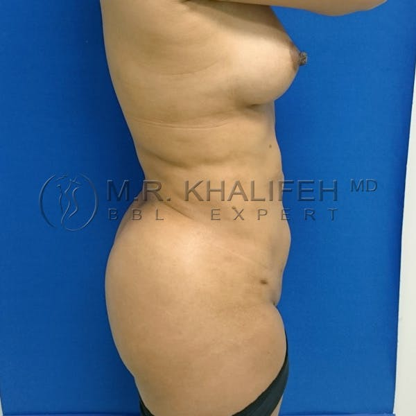 Flank-Lower Back Liposuction Gallery - Patient 3720768 - Image 8