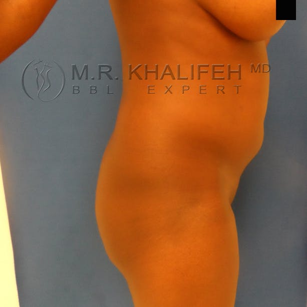 Flank-Lower Back Liposuction Gallery - Patient 3720834 - Image 3