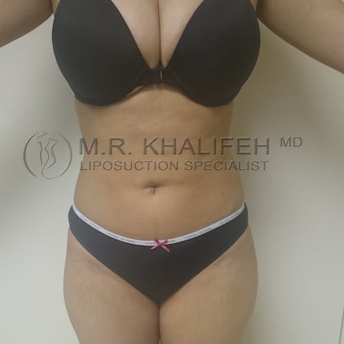 Flank-Lower Back Liposuction Gallery - Patient 3720888 - Image 2