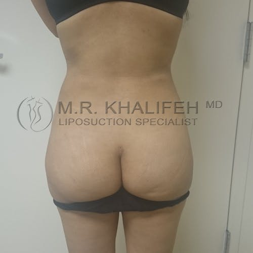 Flank-Lower Back Liposuction Gallery - Patient 3720888 - Image 4