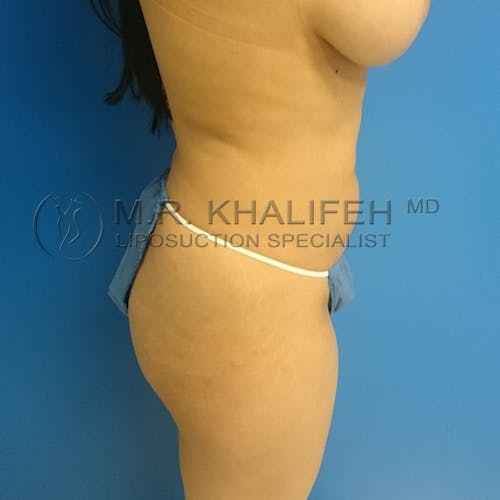 Flank-Lower Back Liposuction Gallery - Patient 3720888 - Image 7