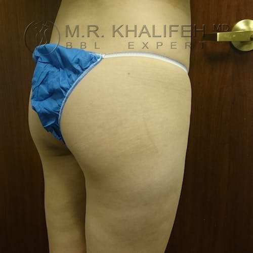Flank-Lower Back Liposuction Gallery - Patient 3721014 - Image 7