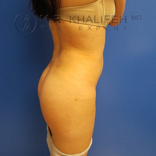 Flank-Lower Back Liposuction Gallery - Patient 3721014 - Image 8