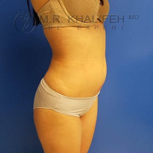 Flank-Lower Back Liposuction Gallery - Patient 3721014 - Image 10