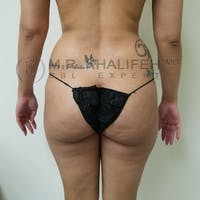 Flank-Lower Back Liposuction Gallery - Patient 3721064 - Image 1