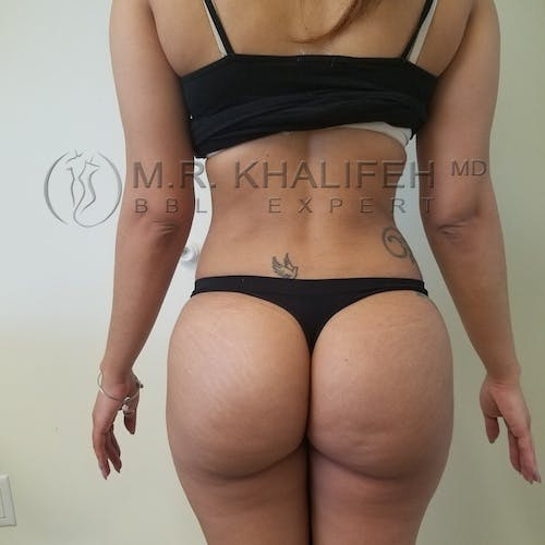 Flank-Lower Back Liposuction Gallery - Patient 3721064 - Image 2