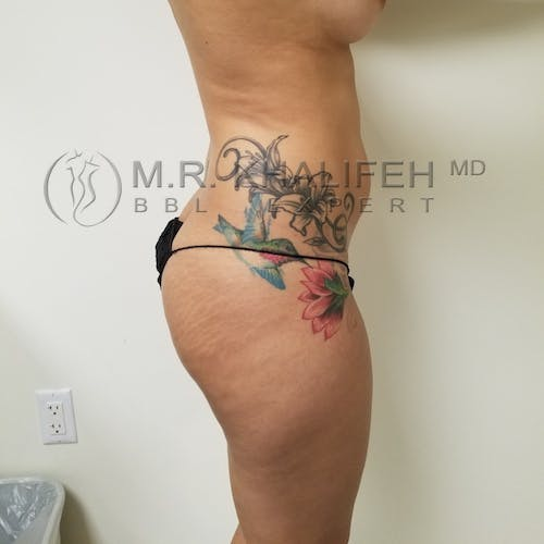Flank-Lower Back Liposuction Gallery - Patient 3721064 - Image 3