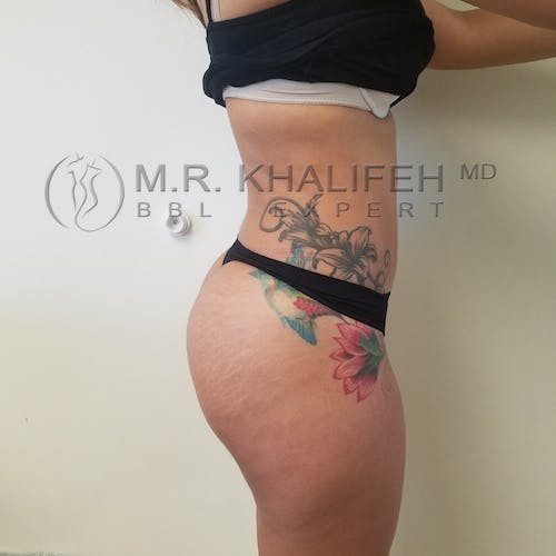 Flank-Lower Back Liposuction Gallery - Patient 3721064 - Image 4