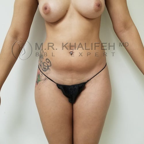 Flank-Lower Back Liposuction Gallery - Patient 3721064 - Image 5