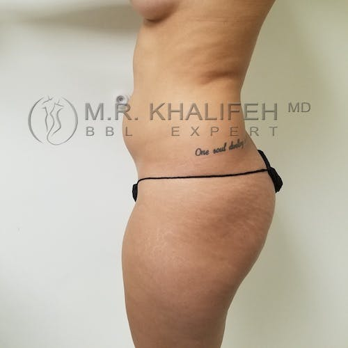 Flank-Lower Back Liposuction Gallery - Patient 3721064 - Image 7