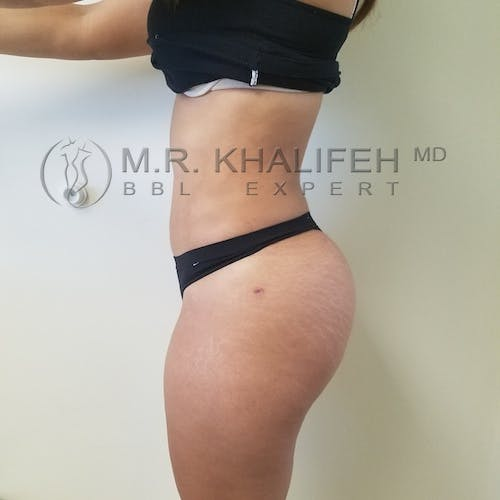 Flank-Lower Back Liposuction Gallery - Patient 3721064 - Image 8