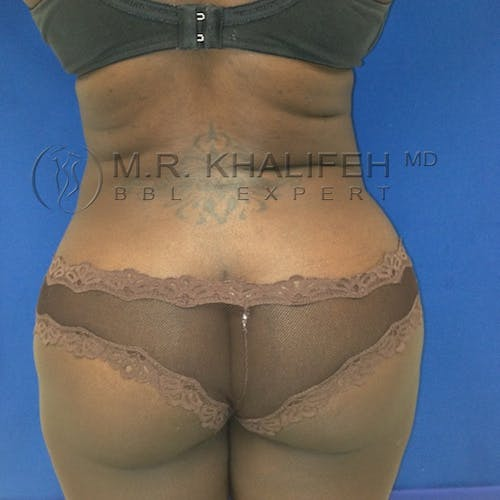 Flank-Lower Back Liposuction Gallery - Patient 3721097 - Image 2