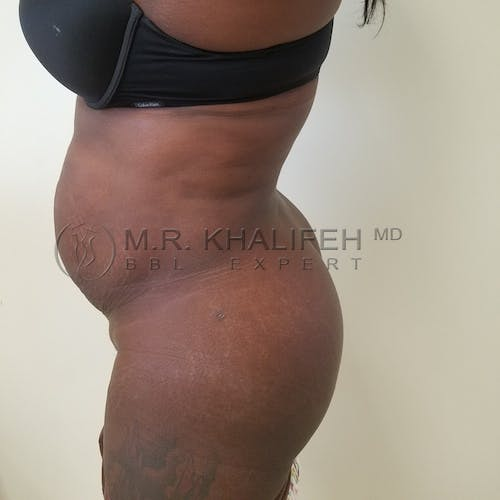 Flank-Lower Back Liposuction Gallery - Patient 3721138 - Image 4
