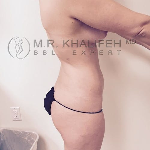Flank-Lower Back Liposuction Gallery - Patient 3721198 - Image 3