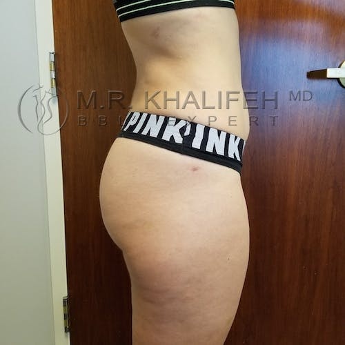 Flank-Lower Back Liposuction Gallery - Patient 3721198 - Image 4