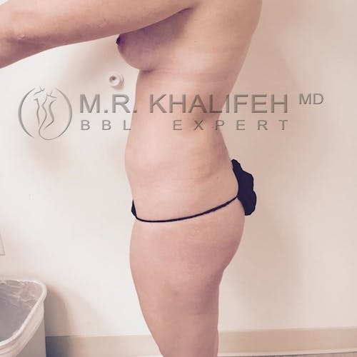 Flank-Lower Back Liposuction Gallery - Patient 3721198 - Image 5