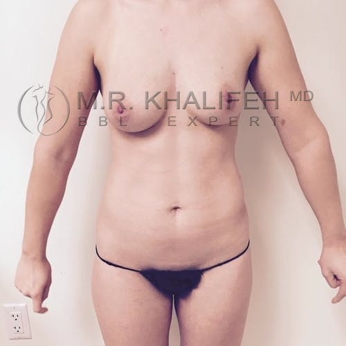 Flank-Lower Back Liposuction Gallery - Patient 3721198 - Image 7