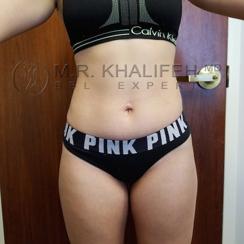 Flank-Lower Back Liposuction Gallery - Patient 3721198 - Image 8