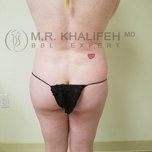 Flank-Lower Back Liposuction Gallery - Patient 3721256 - Image 1