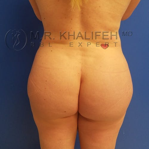 Flank-Lower Back Liposuction Gallery - Patient 3721256 - Image 2