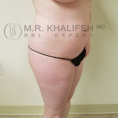 Flank-Lower Back Liposuction Gallery - Patient 3721256 - Image 5