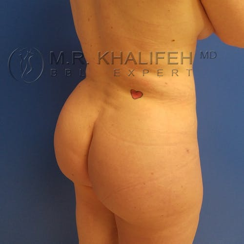 Flank-Lower Back Liposuction Gallery - Patient 3721256 - Image 10
