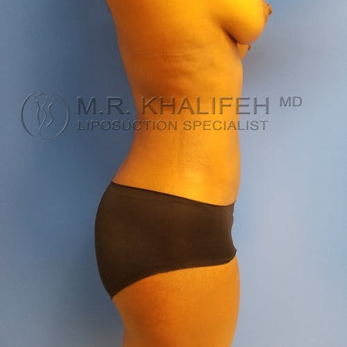 Flank-Lower Back Liposuction Gallery - Patient 3721290 - Image 6